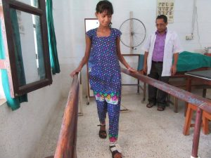 Vibya learning to walk with foot-drop